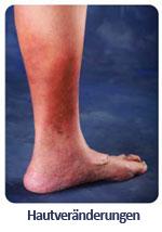 Krankheitsbild: Hautveränderungen
